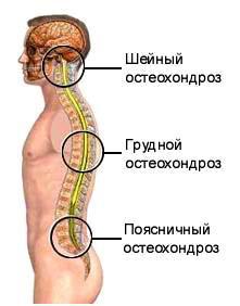 Болит шея с правой стороны и напряжена мышца: причины, лечение